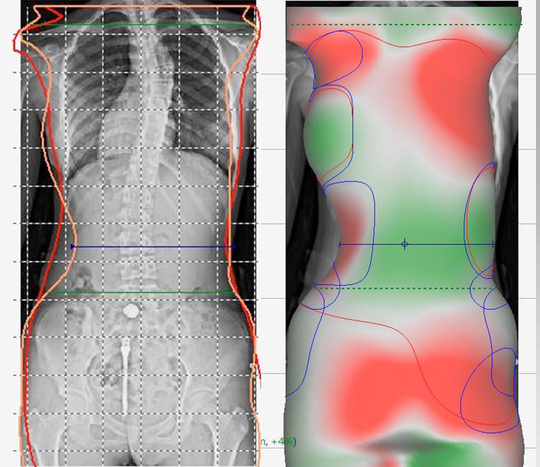 3d data of body (2)